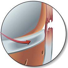 Разрыв боковых связок коленного сустава: симптомы, диагностика и лечение