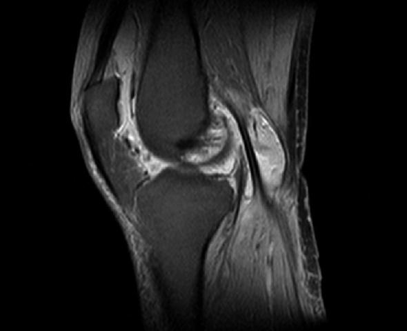 Изображение - Отекают выше колена сустав в норме mrt12