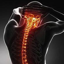 Дорсопатия шейного отдела позвоночника: что это, симптомы и лечение