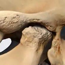 Артроз челюстно-лицевого сустава: симптомы, диагностика и лечение