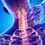 Невралгия шейного отдела позвоночника: причины, симптомы и лечение