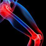 Боли в суставах ног: причины, диагностика и лечение