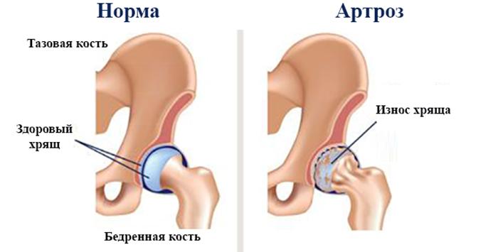 Мануальная терапия при коксартрозе тазобедренного сустава