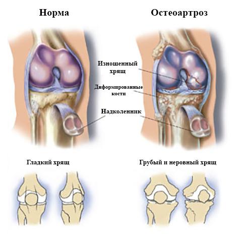 Норма и остеоартроз