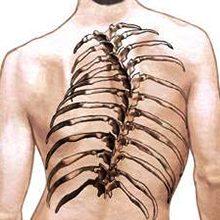 Сколиоз грудного отдела позвоночника: симптомы и методы лечения