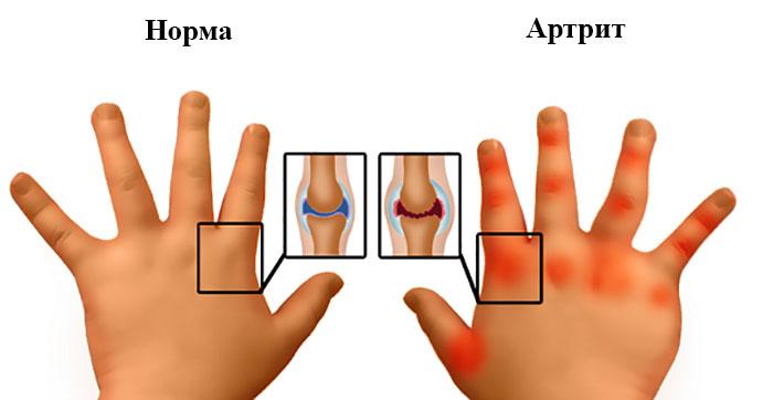 Норма и артрит