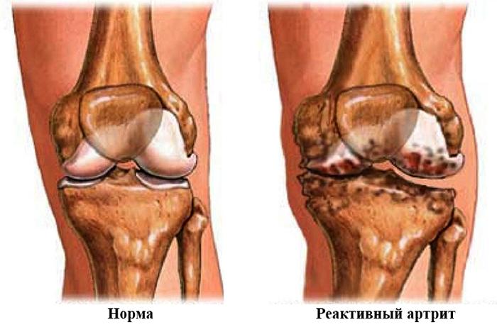 Норма и реактивный артрит