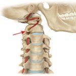 Чем опасен шейный остеохондроз и какие могут быть последствия