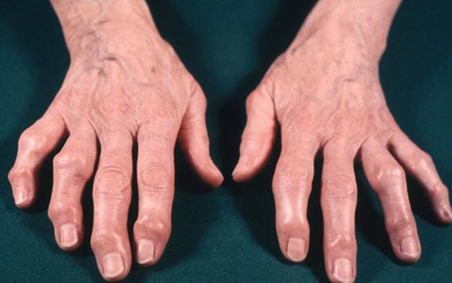 Симптомы на кистях