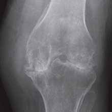 Реактивный артрит коленного сустава: причины, симптомы, диагностика и лечение