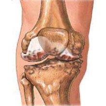 Остеоартроз: что это, симптомы и как лечить