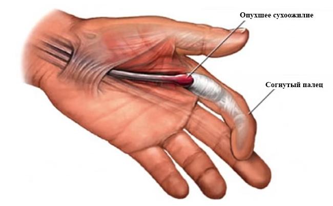 Причины, симптомы и лечение болезней тазобедренного сустава