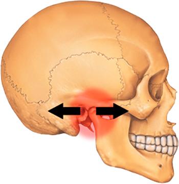 Опасность артрита