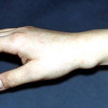 Гигрома запястья: симптомы, диагностика и лечение (с фото)
