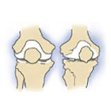Деформирующий остеоартроз коленного сустава (доа): что это, степени и лечение