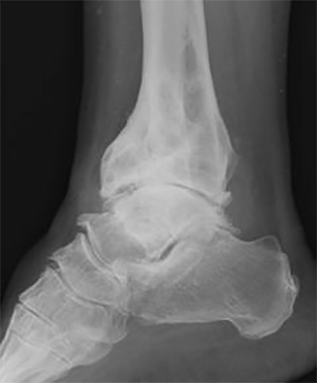 Остеоартроз голеностопного сустава на снимке