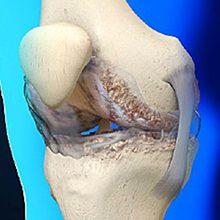 Артроз суставов: что это, симптомы, диагностика и лечение