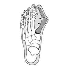 Артроз плюснефаланговых суставов стоп: симптомы и лечение