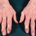 Остеоартроз кистей рук: причины, симптомы и лечение