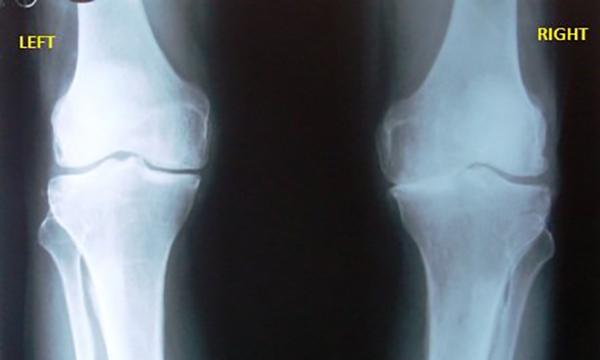 Снимок остеоартроза