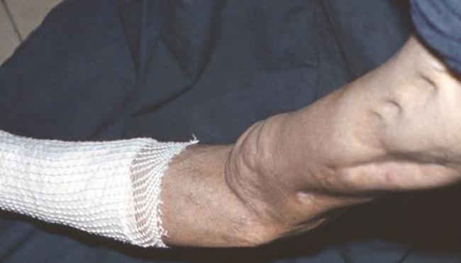 Симптомы остеомиелита бедра