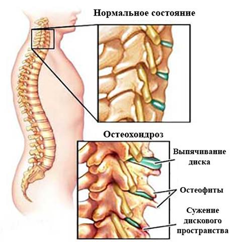 Как выглядит шейный остеохондроз