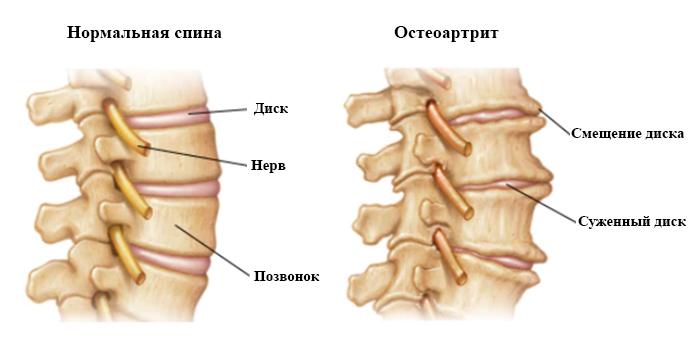 Норма и остеоартрит
