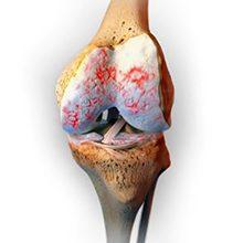 Остеоартроз коленного сустава 2 степени: особенности, симптомы и лечение