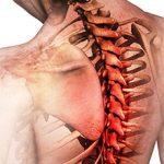 Остеохондроз грудного отдела позвоночника: симптомы, диагностика и лечение