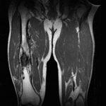 Остеомиелит бедренной кости — классификация, симптомы и лечение