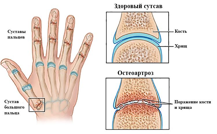 Остеоартроз кисти