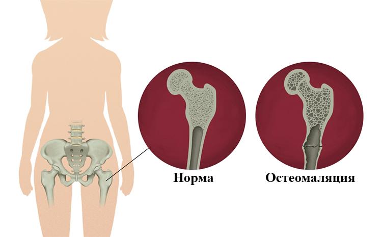 Норма и остеомаляция
