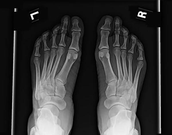 Остеопороз стопы на снимке
