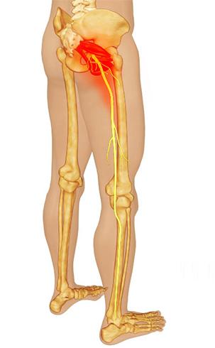 Синдромом грушевидной мышцы