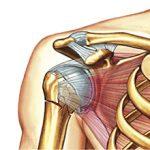 Перелом шейки плеча: причины, симптомы и лечение