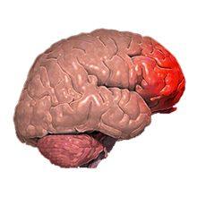 Ушиб головного мозга: симптомы, лечение и последствия
