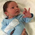 Перелом ключицы у новорожденного при родах: причины и последствия