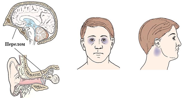 Симптомы перелома