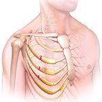 Перелом рёбер: симптомы, последствия и лечение
