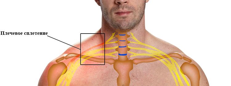 Воспаление плечевого нерва симптомы и лечение