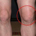 Шишка на колене — что это может быть, чем опасно и что делать