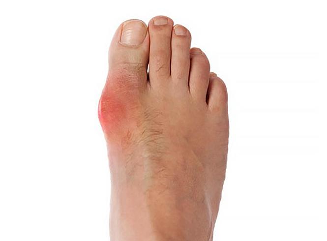 Подагра на пальце ноги