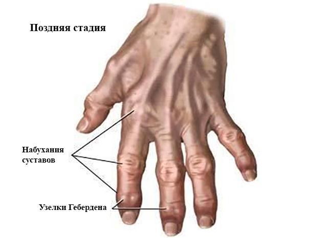 Поздняя стадия остеоартроза