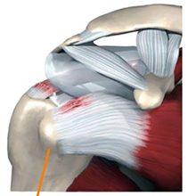 Разрыв сухожилия надостной мышцы плеча: симптомы и методы лечения