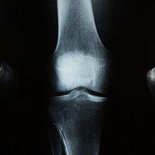 Разрыв мениска коленного сустава: симптомы и лечение (с операцией и без)