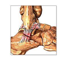 Разрыв связок голеностопного сустава: сколько заживает, симптомы и лечение