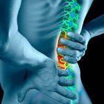 Радикулит: что это, симптомы и лечение