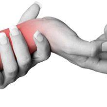 Растяжение запястья: симптомы, диагностика и лечение