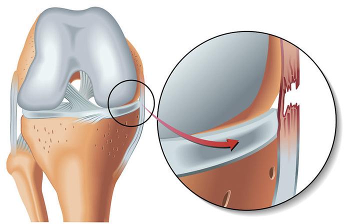 Разрыв связок коленного сустава лечение и симптомы