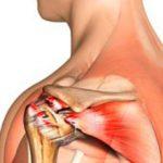 Растяжение связок плечевого сустава: симптомы, диагностика и лечение